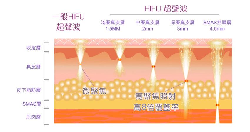 HIFU-05